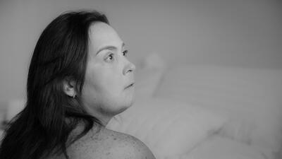 """Vivir con la enfermedad de la mujer de piedra: """"Mi cara tenía aspecto de máscara"""""""