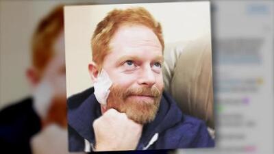 Actor de 'Modern Family' tuvo cáncer en el rostro