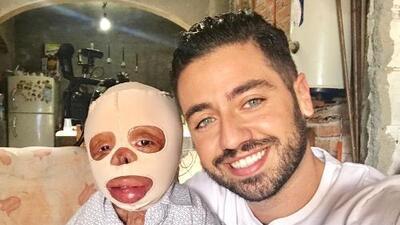 Un pequeño gran guerrero: Mateo sobrevivió a un fatal accidente que le quemó casi todo su cuerpo