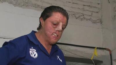 Un trasplante de rostro, la esperanza de un hombre víctima de burlas e insultos cuando sale a la calle