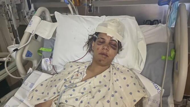 Accidente de tránsito en Austin deja cuatro heridos y a una persona sin vida