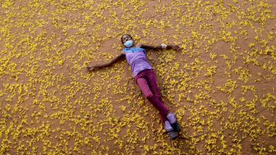 """""""Yo debí nacer rica para poder comprarme un riñón"""": pacientes de diálisis sufren por los continuos apagones en Venezuela (fotos)"""