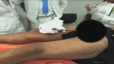 Una varilla de hierro le atravesó los testículos a un hombre