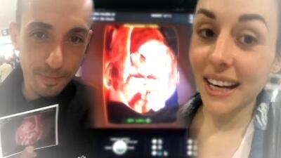 Zuria Vega y Alberto Guerra revelan el sexo y nombre de su segundo bebé