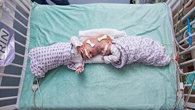 Las siamesas que nacieron unidas por la cabeza y lograron sobrevivir al ser separadas