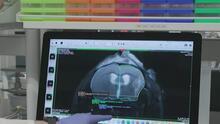 ¿Por qué las mujeres son más propensas a sufrir un derrame cerebral? Experto aclara