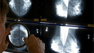 Las razones por las que una mamografía es el mejor recurso para descartar cáncer de seno