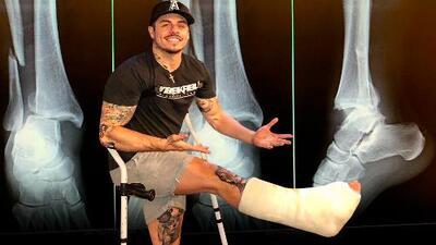 Casper Smart se quita el yeso a menos de un mes de romperse el tobillo, pero no le gusta cómo se ve
