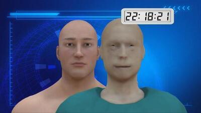 Cómo fue el trasplante de rostro más complejo