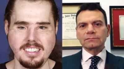 La impactante historia de un joven que se disparó en el rostro y fue sometido a un trasplante por un cirujano latino