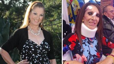 Viola Dorantes, hermana de Paquita la del Barrio, sufre lesiones al caérsele un equipo de sonido en la cabeza