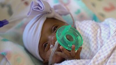 """Llega a su casa la """"bebé más pequeña del mundo"""" tras cinco meses en cuidados intensivos"""