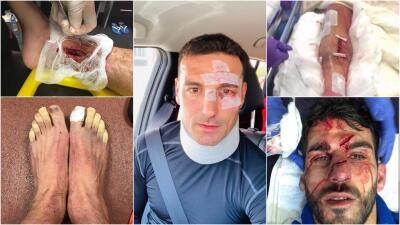 Las fotos más gore del fútbol: Lionel Scaloni se unió a esta lista tras su accidente