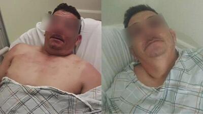Fue golpeado brutalmente hasta casi perder un ojo y uno de los sospechosos es un menor de edad