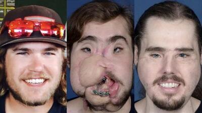 Joven que se disparó en el rostro para quitarse la vida recibió un trasplante de cara gracias a un médico hispano