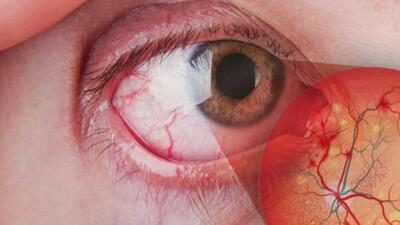 Cuáles son los problemas más comunes de los ojos y cómo detectarlos