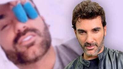 """Imágenes sensibles: Mauricio Mejía muestra cómo se """"rebanó"""" los dedos limpiando en su casa"""