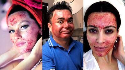 Lo hicieron Kim Kardashian y Gisele Bündchen, y ahora le tocó a nuestro Oscar Petit: la sangrienta técnica del 'facial vampiro'