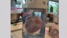 Desarrollan en San Antonio una nueva manera de transportar órganos para trasplante