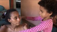 Madre e hija dominicanas sufren una rara enfermedad cerebral sin cura que quita la habilidad de caminar y hablar