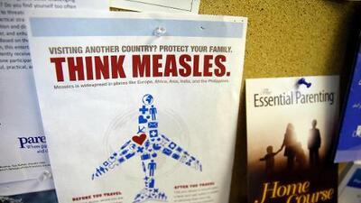 Residentes del Área de la Bahía estuvieron expuestos al virus del sarampión en zonas turísticas y restaurantes
