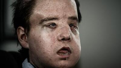 El hombre de las tres caras: el primero en ser trasplantado dos veces de rostro