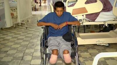 Hispano sufre amputación de piernas y pierde un ojo en su desesperación por regresar a EEUU
