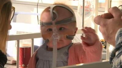 Esta bebé nació con el corazón fuera de su pecho y ahora, tras más de un año en el hospital, vuelve a casa