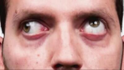 El mal de ojo, un mito que genera pánico y especulaciones entre la comunidad