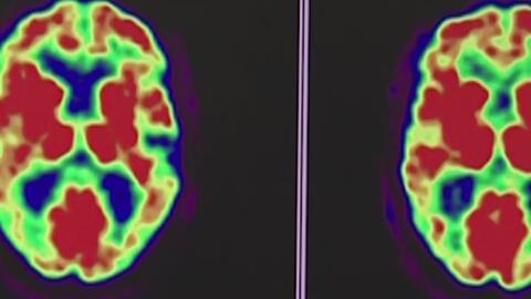 Síntomas y tratamiento del desorden bipolar