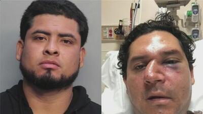 El historial criminal del sospechoso de propinarle una brutal golpiza a un hombre en un restaurante