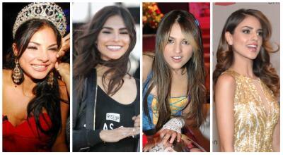 Así les cambió la sonrisa a estos famosos cuando se arreglaron los dientes
