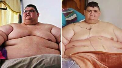Juan Pedro era 'el hombre más obseso del mundo', pero bajó 500 libras y recupera su salud poco a poco