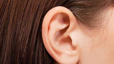 New trend has people removing parts of their ears