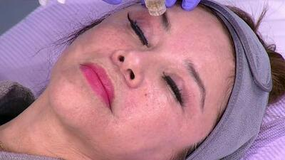Este tratamiento con agujas cubiertas de oro podría ser tu aliado para lucir una piel fresca y rejuvenecida