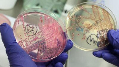 Investigan el origen de un nuevo brote de E. coli que ya afecta a 5 estados