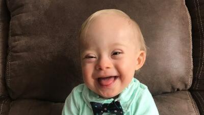 Por primera vez en 90 años de concurso Gerber elige un bebé con síndrome de Down