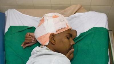 Retiran con éxito un tumor cerebral del tamaño de su cabeza a un hombre en India