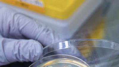 El brote de E. coli se extiende a Illinois, y a otros nueve estados
