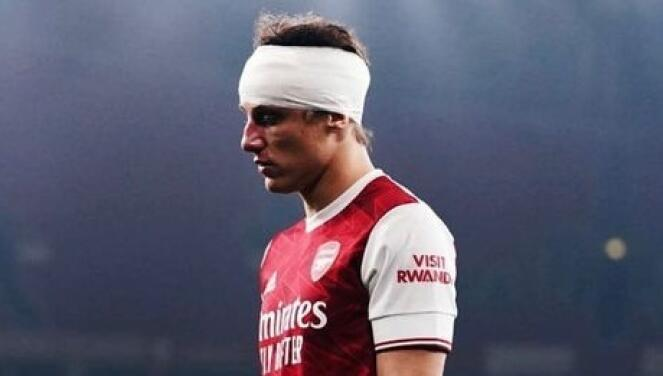 David Luiz pide rezar por la salud de Raúl Jiménez