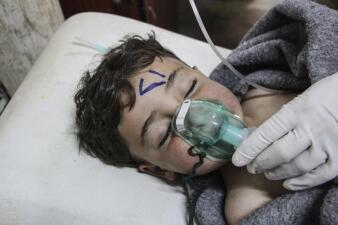 Siria: las dramáticas imágenes del supuesto ataque químico que dejó más de 70 muertos, entre ellos una decena de menores