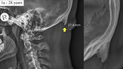 La aparición de una protuberancia en la nuca es asociada a ver demasiado el celular