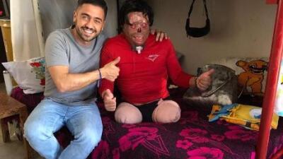 Ayuda de Impacto: Una descarga eléctrica lo dejó desfigurado y ahora pide ayuda para tener un nuevo rostro