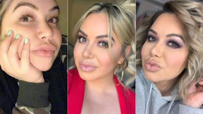EN FOTOS: Chiquis Rivera habló claro sobre sus procedimientos estéticos y sus protuberantes labios