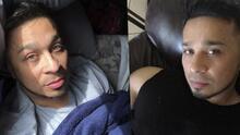 """""""Lloré hasta que ya no podía"""": Jesse Turner reacciona al diagnóstico que recibió por dolores de espalda"""