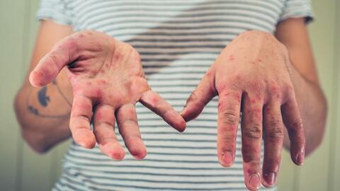 El brote de sarampión sigue propagándose en Nueva York: se registraron 60 nuevos casos esta semana