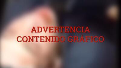 Impactante video muestra a hombre siendo pateado repetidamente en la cara en el subway