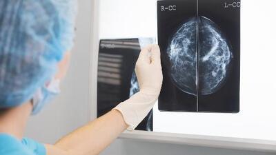Medicamento aumenta la tasa de supervivencia de las mujeres jóvenes que padecen la forma más común de cáncer de mama