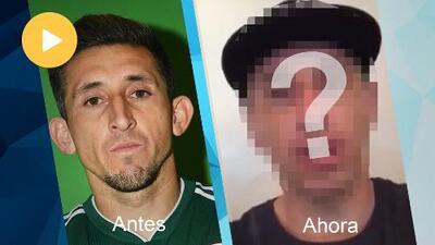 Héctor Herrera le entra al bisturí y se somete a cirugía plástica