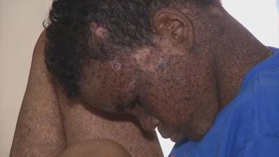 Ayuda de Impacto: Una extraña enfermedad en la piel pone en riesgo la vida de estos gemelos dominicanos